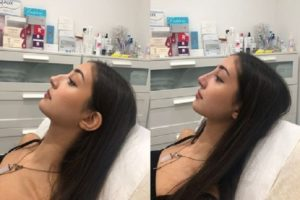 Rhinoplasty Reasons, Procedure and Recovery